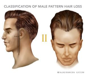 How to reverse thinning hair men