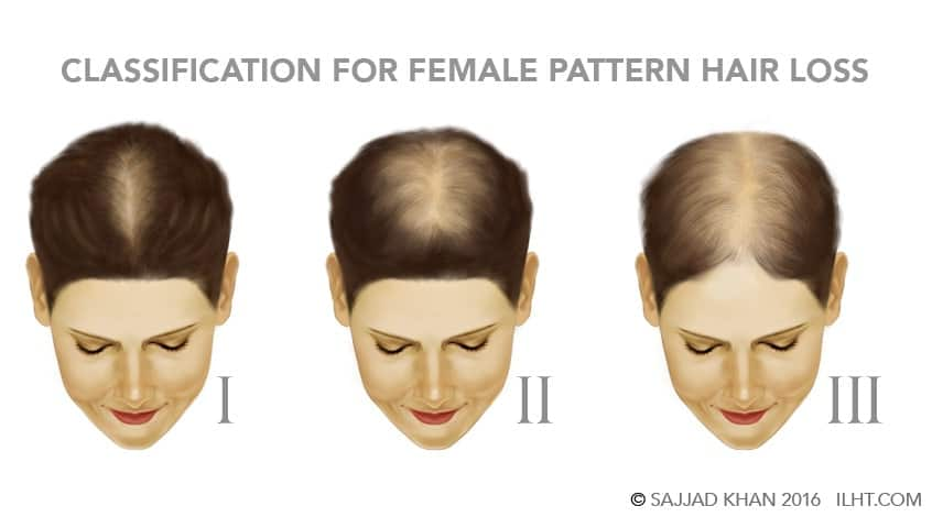 Women Hair Loss Ilht Dubai